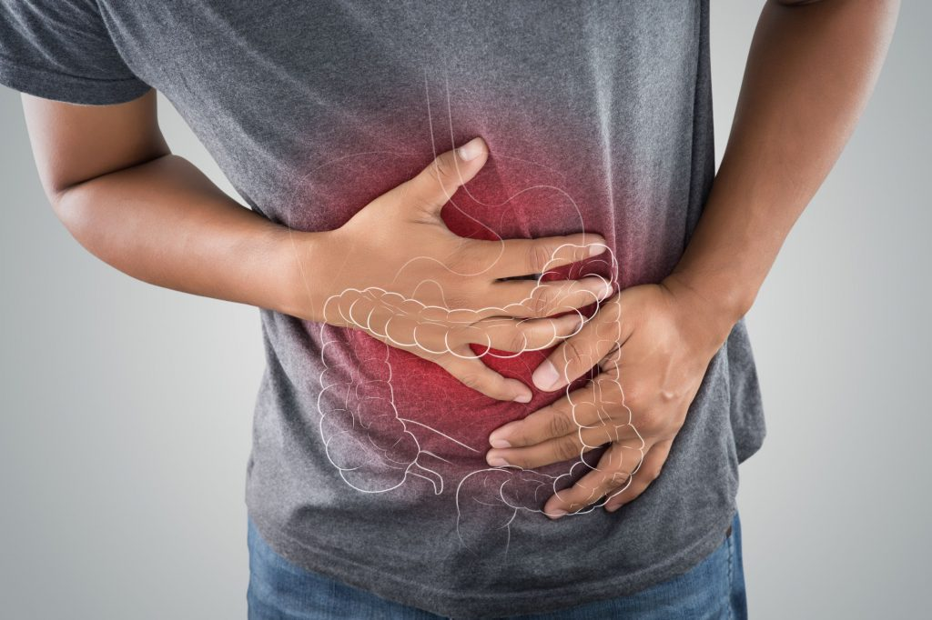 Young adults who need a colonoscopy have a history of colorectal cancer, ulcerative colitis, or gastrointestinal symptoms.